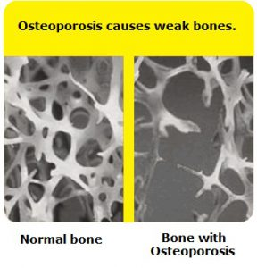 Osteoporosis (extremely low bone density) Vs Normal Bone